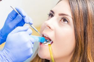 Cavity Treatment San Ramon