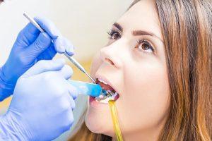 Cavity Treatment San Ramon