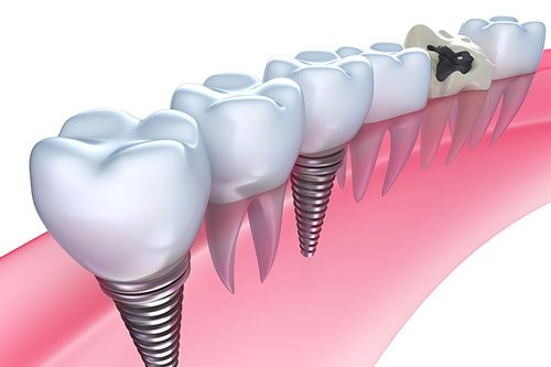 Dental Implants San Ramon