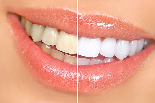 Teeth Whitening San Ramon