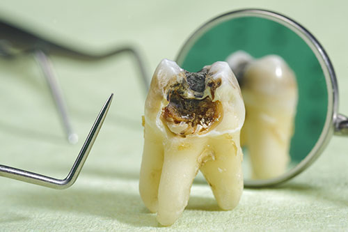 Tooth Decay San Ramon