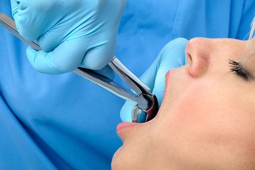 Tooth Extraction San Ramon