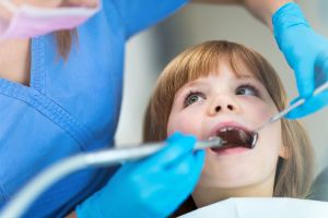 Should You Worry About Cavities In Baby Teeth?