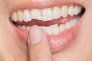 Pointing At Chipped Tooth