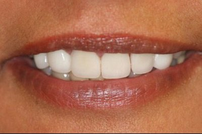 Composite Tooth Bonding