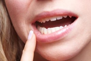 Impacted Wisdom Teeth Symptoms