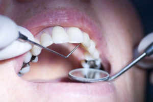 Replace Dental Filling