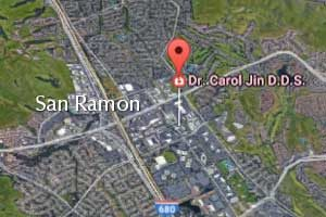 San Ramon General Dentist