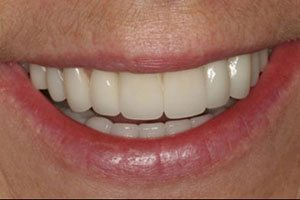 Veneers After Featured