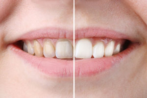 Teeth Whitening After Braces